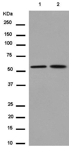 Western blot - Anti-TXNRD2 antibody [EPR12480] (ab180493)