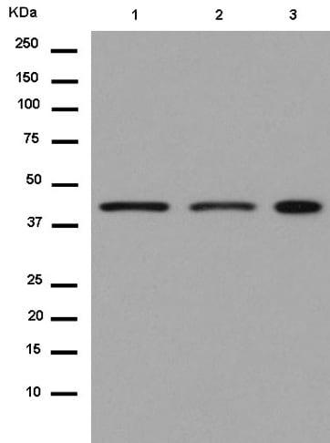 Western blot - Anti-PSMC5 antibody [EPR13566(B)] - C-terminal (ab180495)