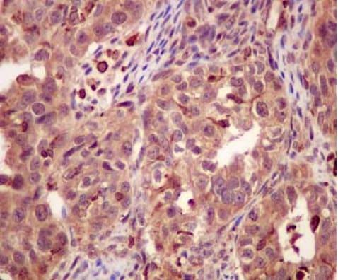 Immunohistochemistry (Formalin/PFA-fixed paraffin-embedded sections) - Anti-PSMC5 antibody [EPR13566(B)] - C-terminal (ab180495)