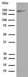 Western blot - Anti-NSD3 antibody [EPR13813] - N-terminal (ab180500)