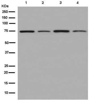 Western blot - Anti-SLC6A19 antibody [EPR14154(B)] (ab180516)