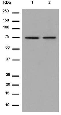 Western blot - Anti-CD127 antibody [EPR2955(2)] (ab180521)