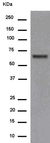 Western blot - Anti-EDEM2 antibody [EPR14043-24] (ab180522)