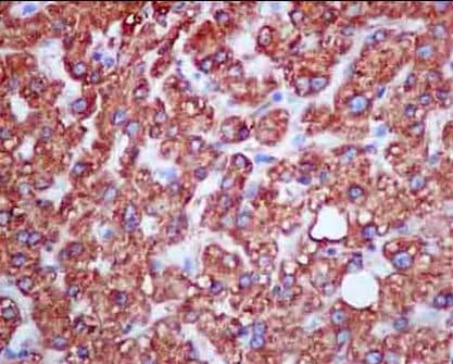 Immunohistochemistry (Formalin/PFA-fixed paraffin-embedded sections) - Anti-KLC3 antibody [EPR11149(2)] (ab180523)