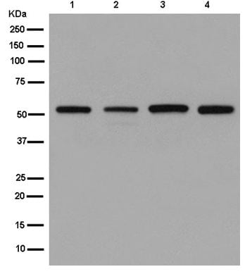 Western blot - Anti-Glycerol kinase antibody [EPR6566] (ab180525)