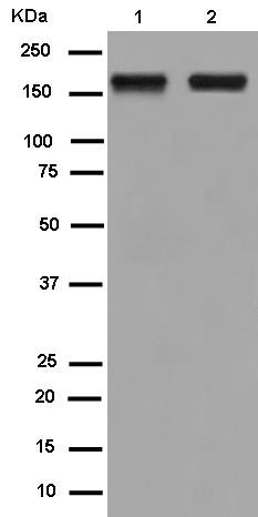 Western blot - Anti-SAMD9 antibody [EPR13603] (ab180575)