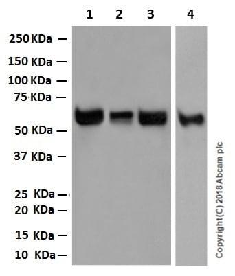 Western blot - Anti-RBPJK antibody [EPR13479] (ab180588)