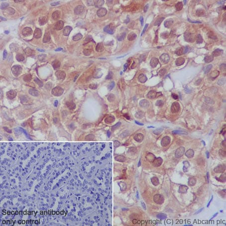 Immunohistochemistry (Formalin/PFA-fixed paraffin-embedded sections) - Anti-S100A11 antibody [EPR11172] (ab180593)