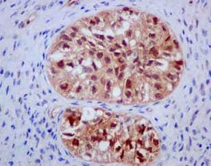 Immunohistochemistry (Formalin/PFA-fixed paraffin-embedded sections) - Anti-DDAH1 antibody [EPR13922] (ab180599)