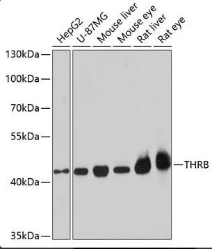 Western blot - Anti-Thyroid Hormone Receptor beta antibody - N-terminal (ab180612)