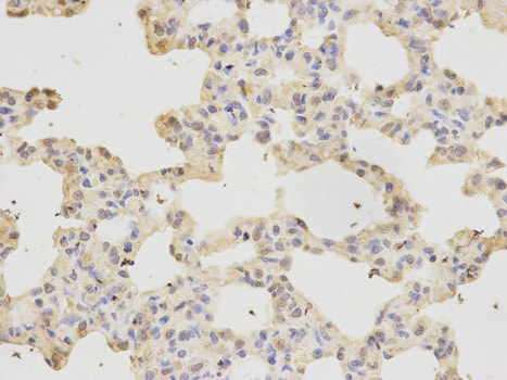 Immunohistochemistry (Formalin/PFA-fixed paraffin-embedded sections) - Anti-RFC1 antibody (ab180613)