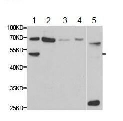 Western blot - Anti-Antithrombin III/ATIII antibody (ab180614)