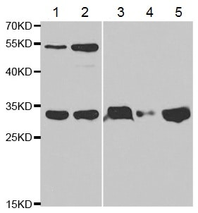 Western blot - Anti-TFPI antibody (ab180619)
