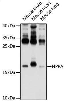 Western blot - Anti-Natriuretic peptides A antibody (ab180649)