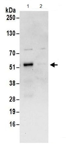 Immunoprecipitation - Anti-FAM53C antibody (ab180659)