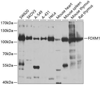 Western blot - Anti-FOXM1 antibody (ab180710)