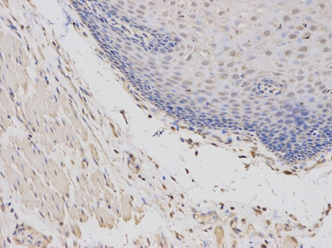 Immunohistochemistry (Formalin/PFA-fixed paraffin-embedded sections) - Anti-MRP4 antibody (ab180712)