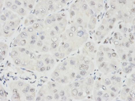Immunohistochemistry (Formalin/PFA-fixed paraffin-embedded sections) - Anti-Ikaros antibody - N-terminal (ab180713)