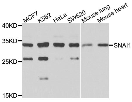 Western blot - Anti-SNAIL + SLUG antibody (ab180714)