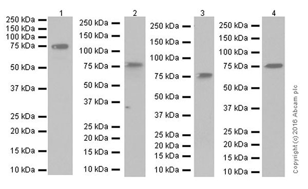 Western blot - Anti-IRAK-1 antibody [EPR18630] (ab180747)