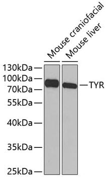 Western blot - Anti-Tyrosinase antibody (ab180753)