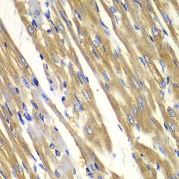 Immunohistochemistry (Formalin/PFA-fixed paraffin-embedded sections) - Anti-Tyrosinase antibody (ab180753)