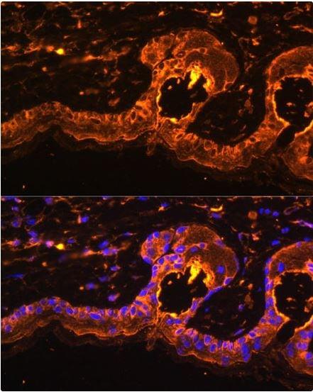 Immunocytochemistry/ Immunofluorescence - Anti-Tyrosinase antibody (ab180753)