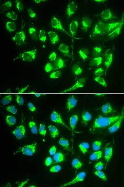 Immunocytochemistry/ Immunofluorescence - Anti-Solute carrier family 22 member 5 antibody (ab180757)