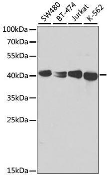 Western blot - Anti-TCPTP antibody (ab180764)