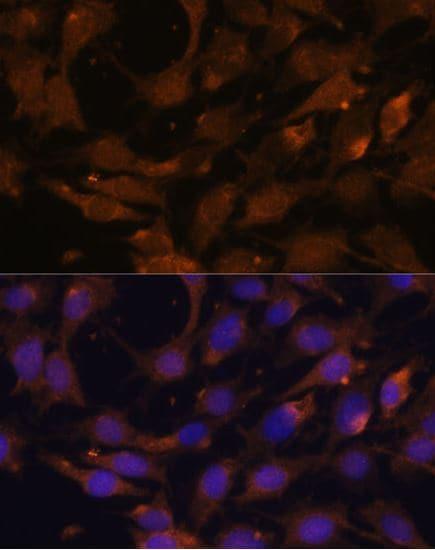 Immunocytochemistry/ Immunofluorescence - Anti-Ras antibody (ab180772)