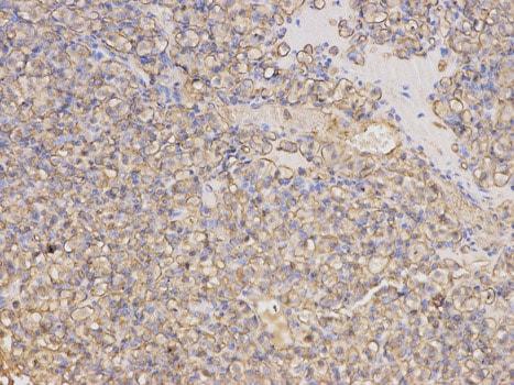 Immunohistochemistry (Formalin/PFA-fixed paraffin-embedded sections) - Anti-Thymidine Phosphorylase antibody - N-terminal (ab180783)