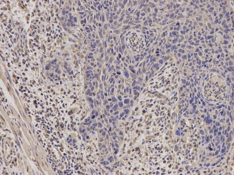 Immunohistochemistry (Formalin/PFA-fixed paraffin-embedded sections) - Anti-StAR antibody (ab180804)