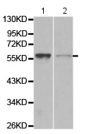 Western blot - Anti-WASP/Wiskott-Aldrich syndrome protein antibody (ab180816)