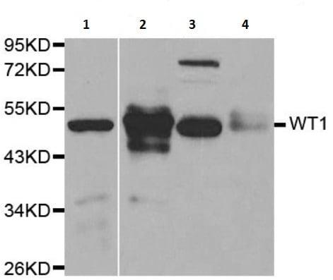 Western blot - Anti-Wilms Tumor Protein antibody (ab180840)