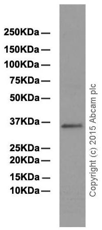 Western blot - Anti-PPA2 antibody [EPR13086] (ab180859)