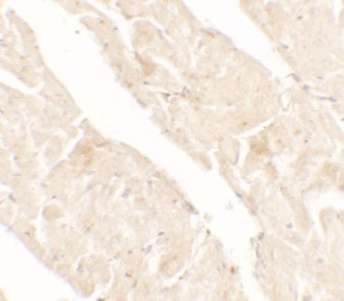 Immunohistochemistry (Formalin/PFA-fixed paraffin-embedded sections) - Anti-AIMP2/p38 antibody (ab180897)