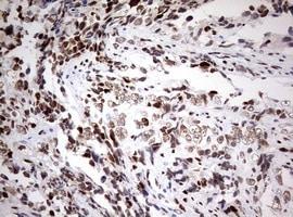 Immunohistochemistry (Formalin/PFA-fixed paraffin-embedded sections) - Anti-ZEB1 antibody [OTI3G6] - N-terminal (ab180905)