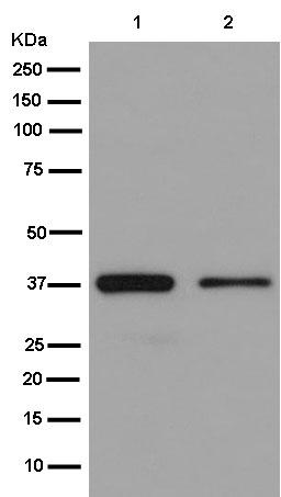 Western blot - Anti-RBMX2 antibody [EPR14394] (ab180940)