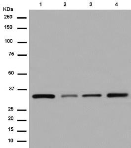 Western blot - Anti-COPE antibody [EPR12579] (ab180946)