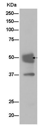 Immunoprecipitation - Anti-TRBP antibody [EPR13550] (ab180947)