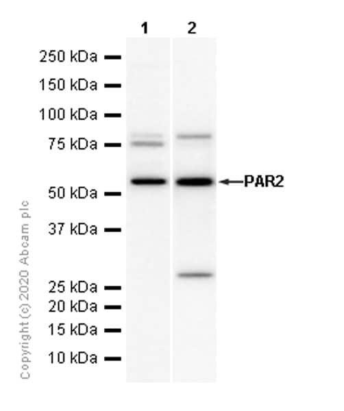 Western blot - Anti-PAR2 antibody [EPR13675] (ab180953)