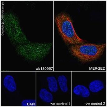 Immunocytochemistry/ Immunofluorescence - Anti-PI 3 Kinase p85 beta antibody [EPR18416] (ab180967)