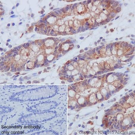 Immunohistochemistry (Formalin/PFA-fixed paraffin-embedded sections) - Anti-PI 3 Kinase p85 beta antibody [EPR18416] (ab180967)