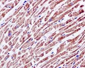 Immunohistochemistry (Formalin/PFA-fixed paraffin-embedded sections) - Anti-NDUFAB1 antibody [EPR6725] (ab181021)