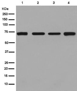 Western blot - Anti-SLC22A1/OCT1 antibody [EPR3668(N)] (ab181022)