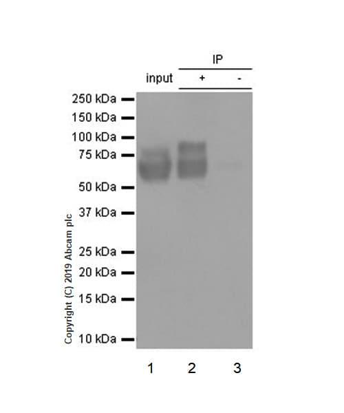 Immunoprecipitation - Anti-Choline Acetyltransferase antibody [EPR13024(B)] (ab181023)
