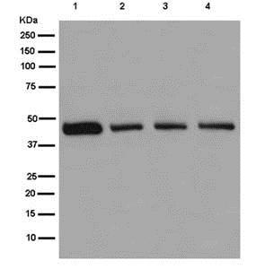 Western blot - Anti-NADK2 antibody [EPR13170] (ab181028)