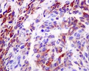 Immunohistochemistry (Formalin/PFA-fixed paraffin-embedded sections) - Anti-NADK2 antibody [EPR13170] (ab181028)
