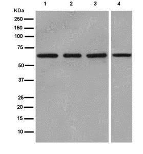 Western blot - Anti-GLP2R antibody [EPR12812] (ab181030)