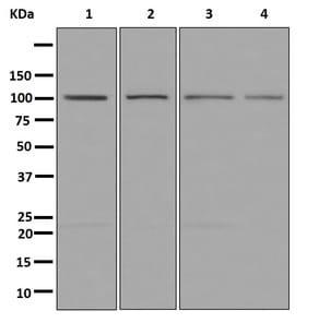 Western blot - Anti-OCRL antibody [EP10256] (ab181039)